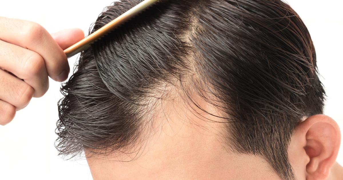 Solusi Hemat untuk Mengatasi Masalah Rambut Lepek pada Pria! 5324cb377c
